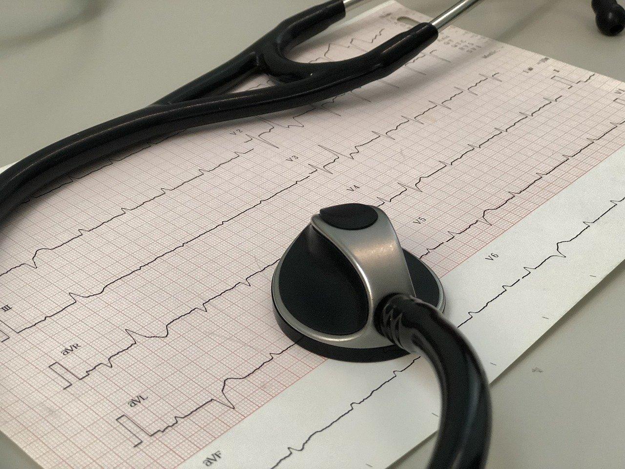 miocardite cardiologo Palermo d'arpa